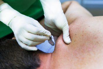 fisioterapia vallecas cervical