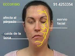 fisioterapia paralisis facial vallecas madrid