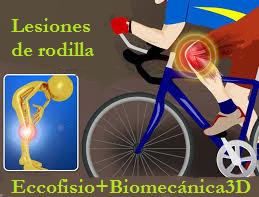 estudio biomecanico ciclismo madrid lesiones rodilla